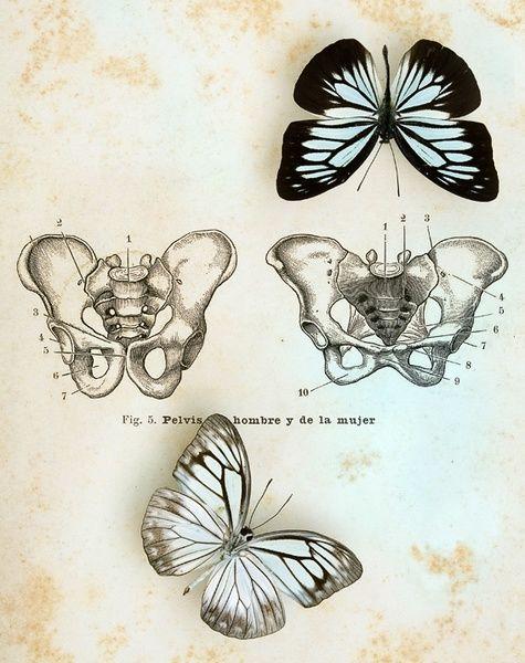 butterfly pelvis